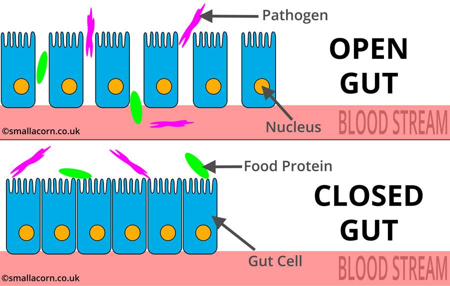 An open gut vs a closed gut