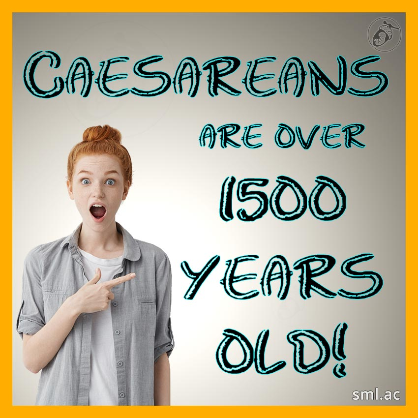 Caesareans Are over 1500 Years Old!