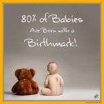 80% of Babies Are Born with a Birthmark!